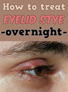 How To Treat Eyelid Stye Overnight Eye Stye Remedies Stye