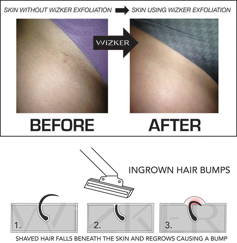 Wizker Brush The Original Ingrown Hair Brush Eliminates Razor Bumps Firmflex Exfoliating Bristles Seale Ingrown Hair How To Exfoliate Skin Ingrown Hair Bump