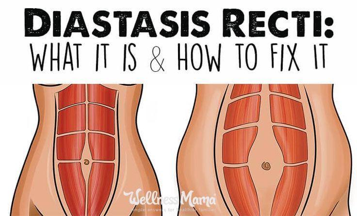 How to identify and fix diastasis recti diastasis recti