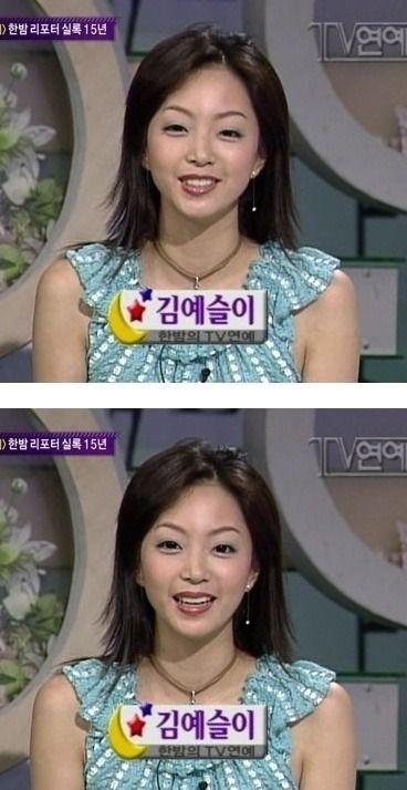 Han Ye Seul After Plastic Surgery - Latest Plastic Surgery