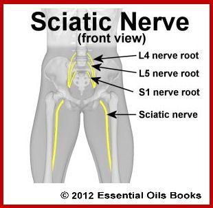 Sciatic nerve diagram l4 l5 pinterest pain relief sciatica sciatic nerve diagram altavistaventures Images