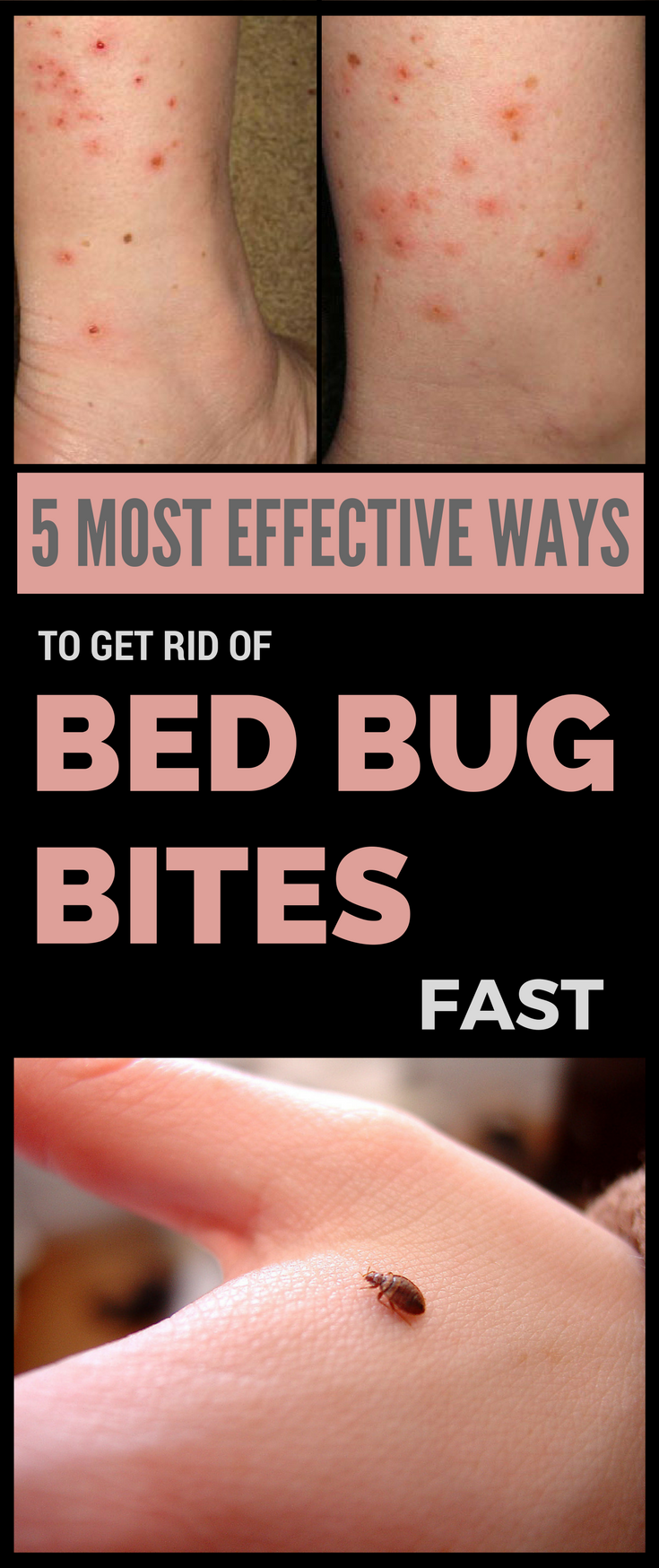 5 Most Effective Ways to Get Rid of Bed Bug Bites Fast