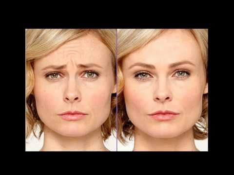 Dr Daniel Daube Of Gulf Coast Facial Plastics Ent Center Explains With Botox Injections Its Medicine Not Magic Botox Plastic Surgery Botox Injections