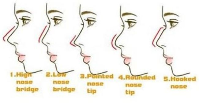 nose types - Google Search | Rhinoplasty | Pinterest ...