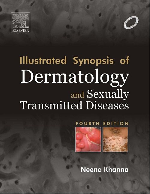 Illustrated Synopsis of Dermatology and Sexually Transmitted