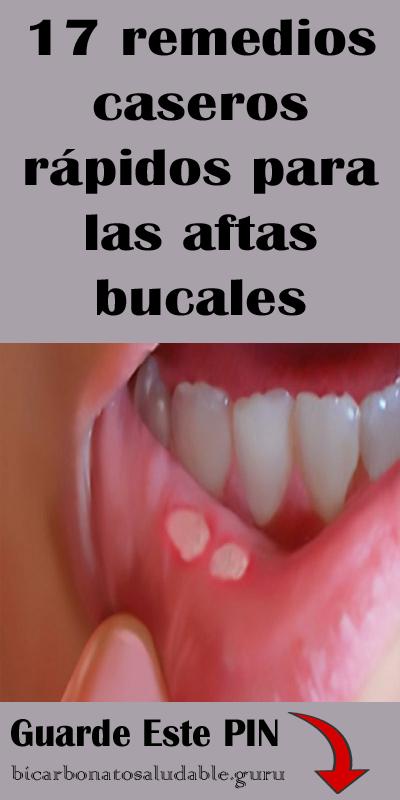 17 Remedios Caseros Rápidos Para Las Aftas Bucales Health Remedies Healthy Plan Dental