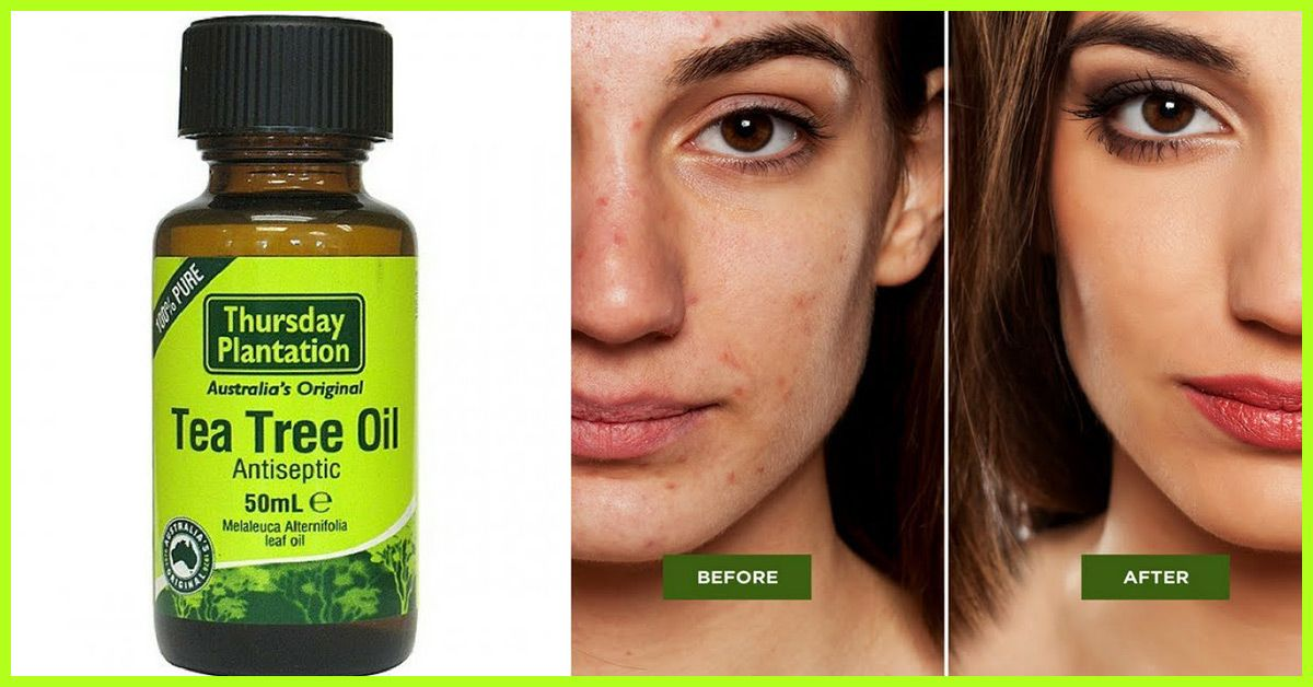 Tea Tree Oil For Acne Benefits Uses Risks And More Tea Tree Oil For Acne Tea Tree Oil Skin Tea Tree Oil Pimples