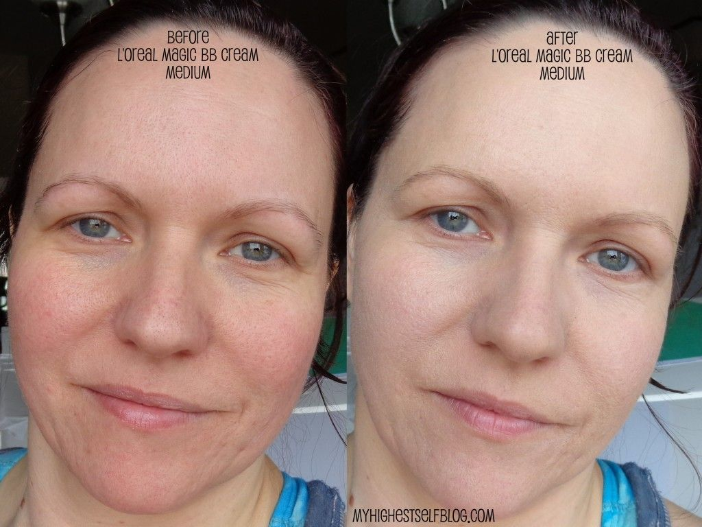 L'oreal Magic BB Cream Before and After via @MyHighestSelfBlog.com ...