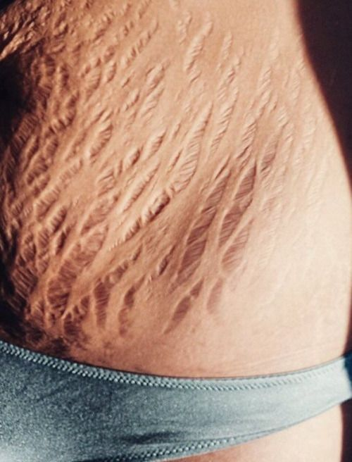 Tattoos Over Stretch Marks Loose Skin