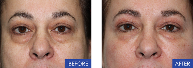 This patient wished to have a non-surgical face lift  Due to aging