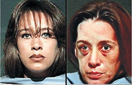 Faces Of Meth Before And After