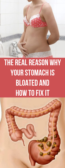 what causes a bloated stomach all the time