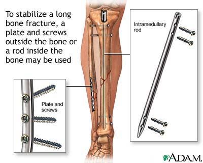 cutaway medical illustration shows repaired fibula and tibia with plate and  screws, and intramedullary rod and screws