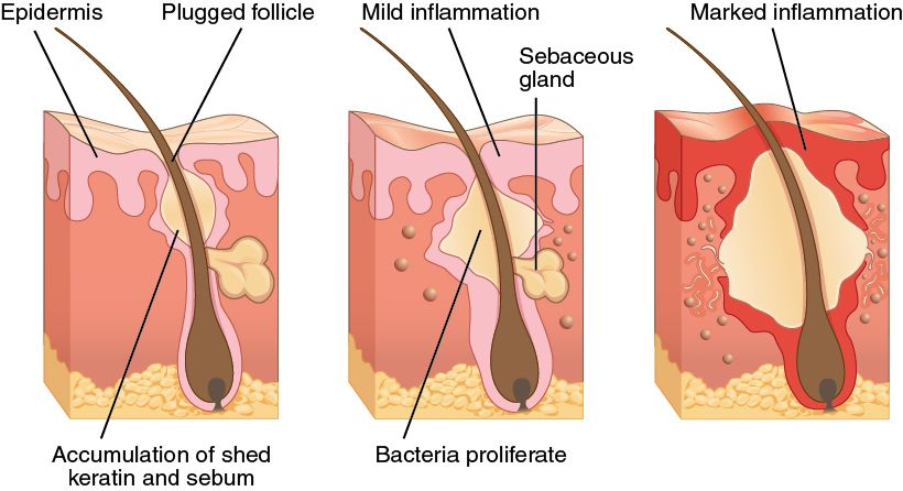 How To Manage Blackheads Do Not Use Toothpaste Skin Care Pimples Back Acne Treatment Acne Scar Removal