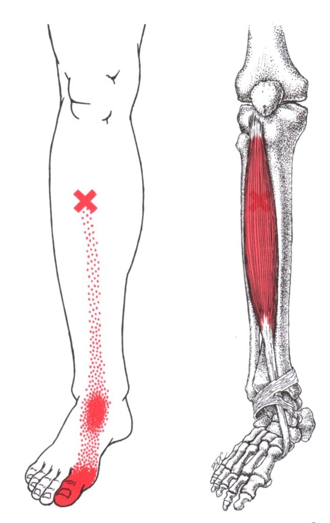 Tibialis Anterior | The Trigger Point & Referred Pain Guide ...