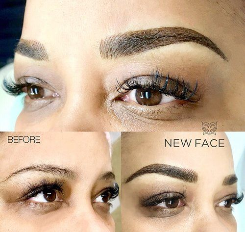 image1 (3).jpeg   Microblading eyebrows, Tattoo removal ...