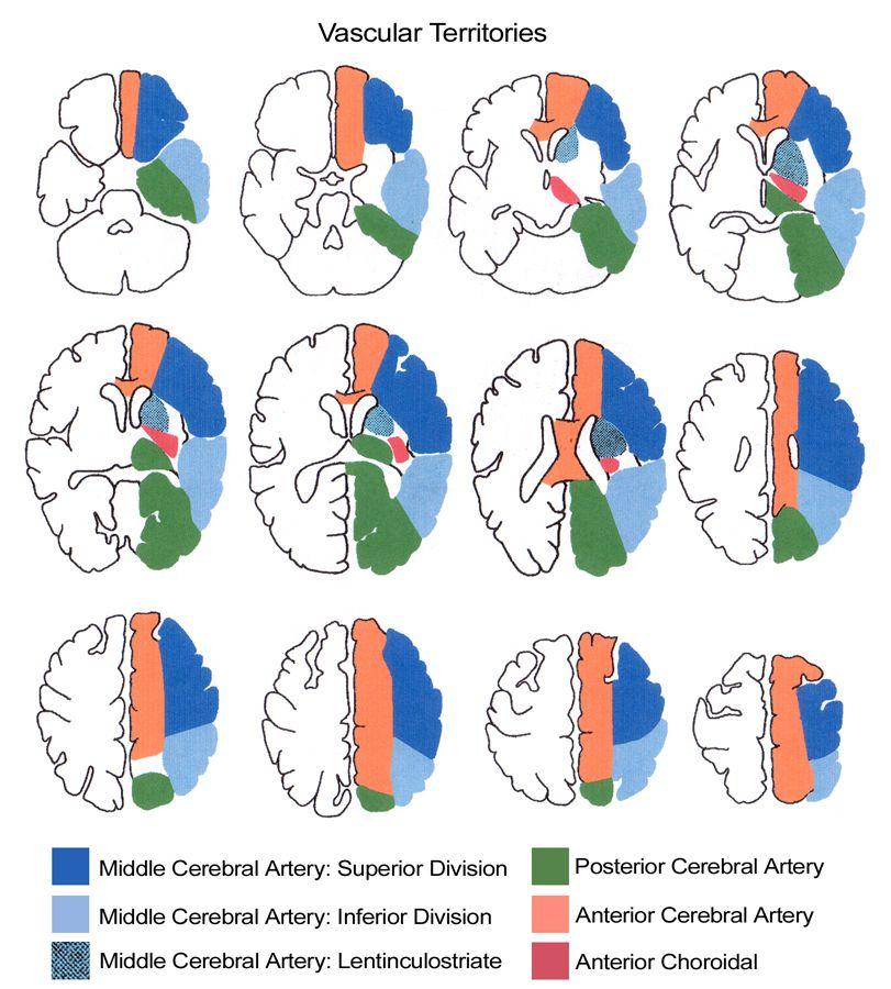 Vertebrobasilar Atherothrombotic Disease - Blood supply to the brain ...