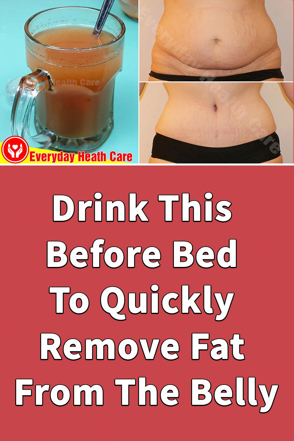 Pin on How To Lose Weight (belly fat) Quickly  Everyday Health Care
