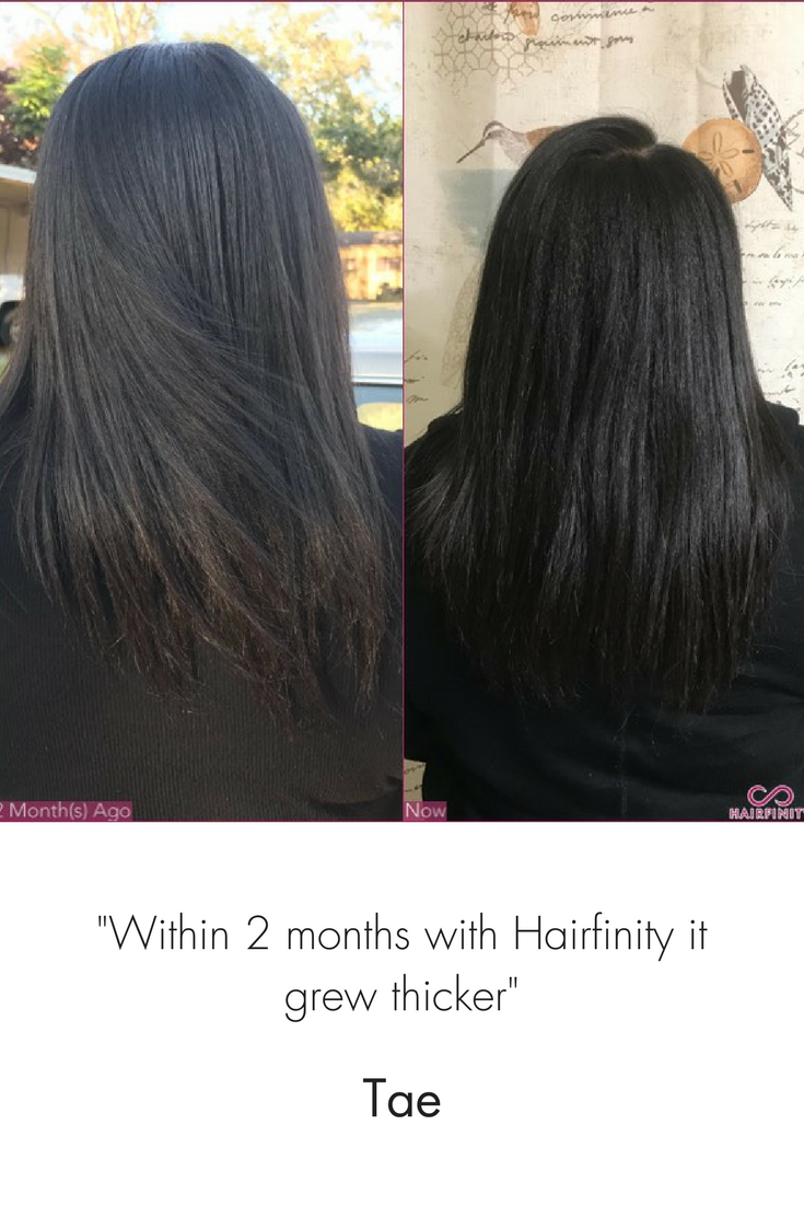 Within 2 Months With Hairfinity It Grew Thicker Hair Growth Tips Hair Growth Treatment Hair Mask For Growth