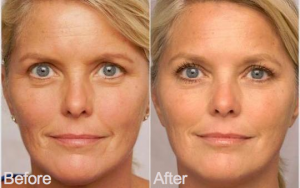 argan oil for face before and after