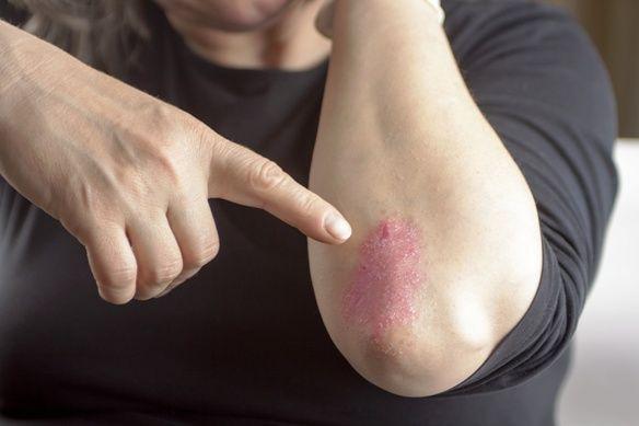 autoimmun betegség pikkelysömör
