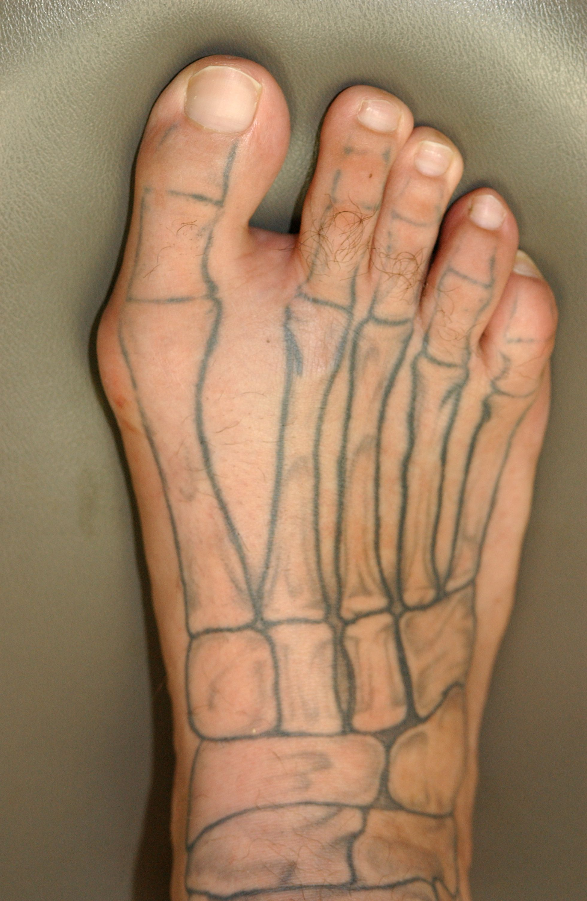 A good anatomy lesson. The bones of the feet. | Foot Report ...