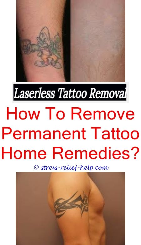 Professional Tattoo Removal I Want To Remove My Tattoo My Tattoo Removal Laser Tattoo