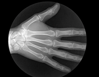 X Ray Gifs X Ray Human Body Anatomical