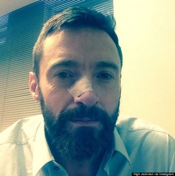 Hugh Jackman Urges People To Check Your Moles For Skin Cancer - What Should You Look For? - http://www.freshcancernews.com/hugh-jackman-urges-people-to-check-your-moles-for-skin-cancer-what-should-you-look-for/