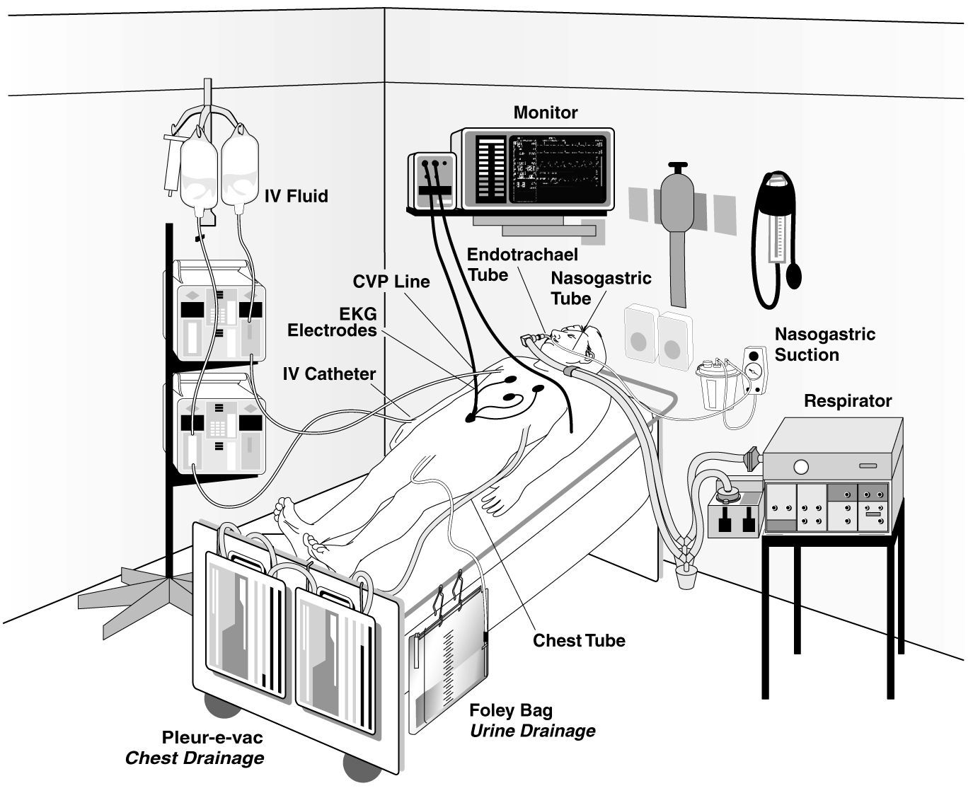 What To Store In An Icu Room