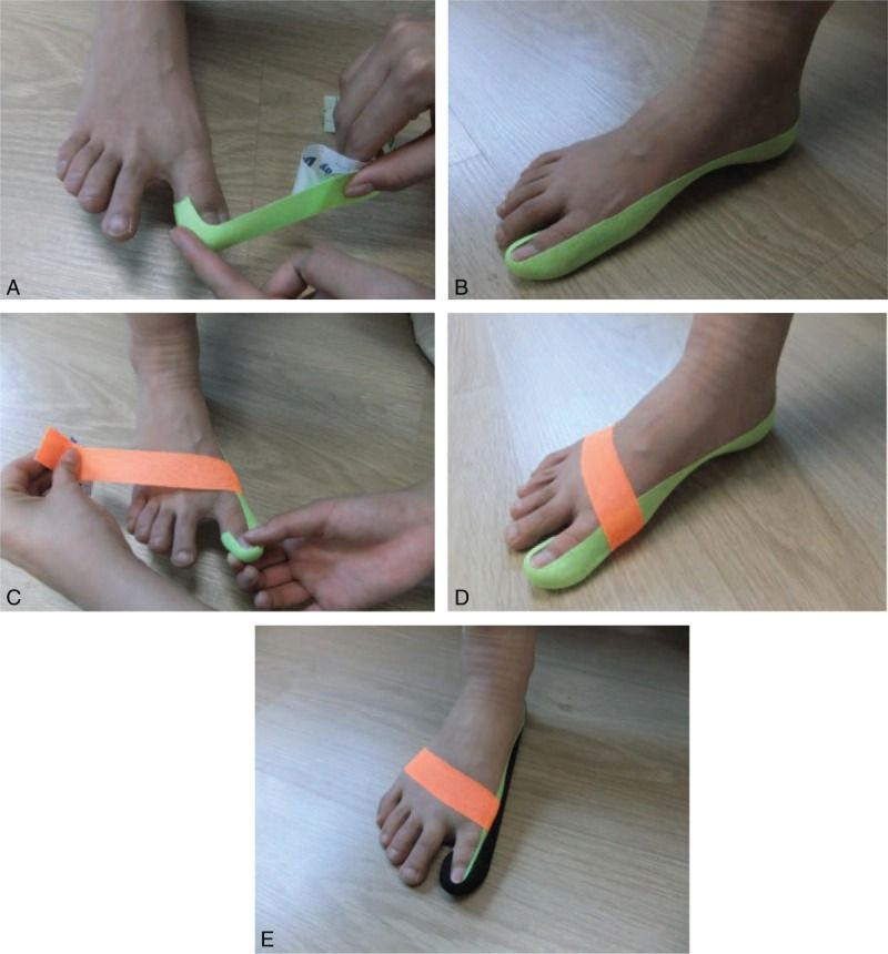 Effects of balance taping using kinesiology tape in a patient with moderate hallux valgus