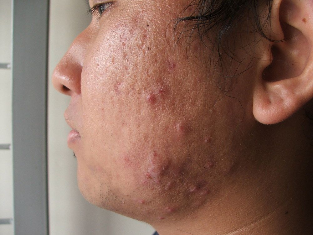 The Complexion Connection How Foods Cause Acne Diagnosis Diet Exposed Skin Care Exposed Acne Treatment Acne Scar Removal