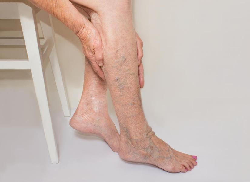 varicose foot medicina oamenilor)
