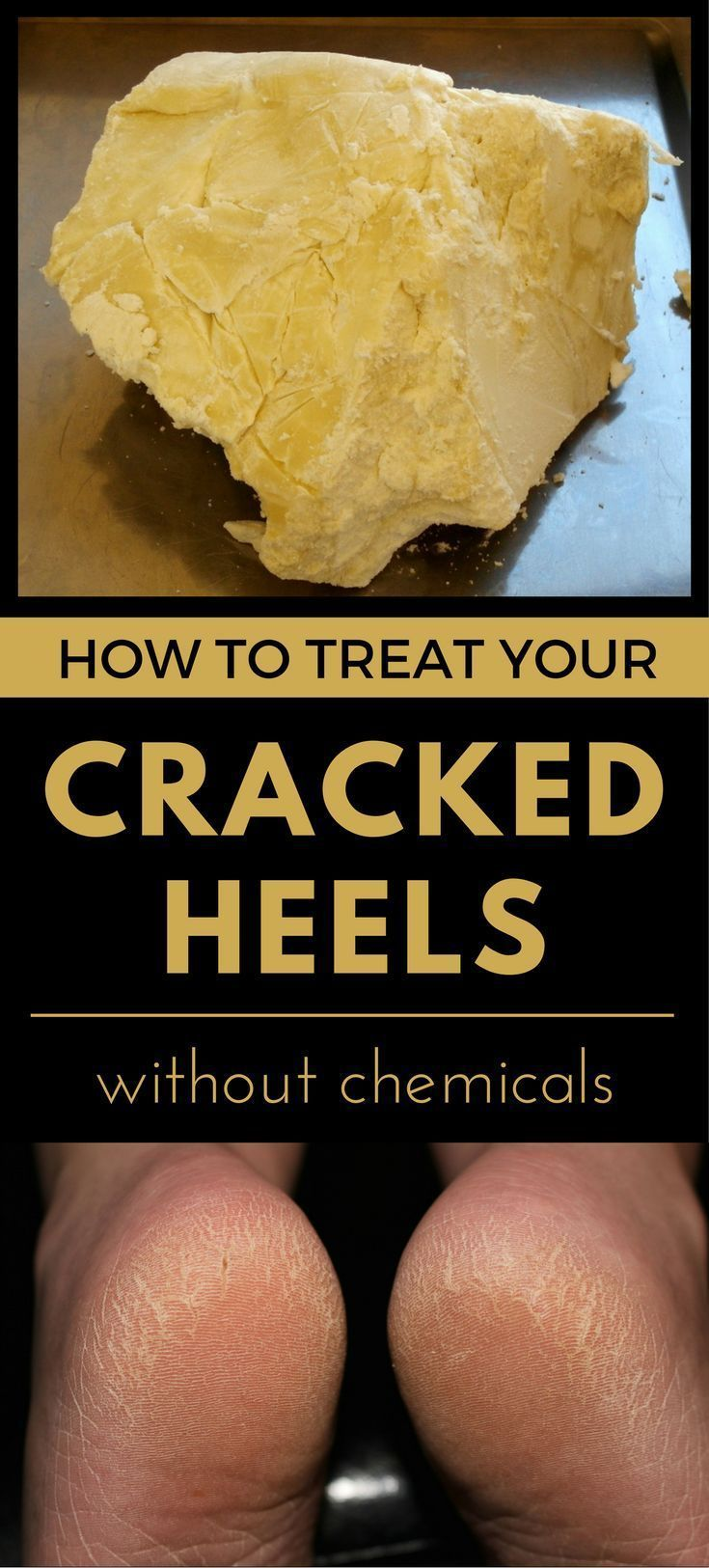Cracked skin results from tiny splits that occur in dry damaged skin. If left u #crackedskinonheels Cracked skin results from tiny splits that occur in dry damaged skin. If left u #crackedskinonheels Cracked skin results from tiny splits that occur in dry damaged skin. If left u #crackedskinonheels Cracked skin results from tiny splits that occur in dry damaged skin. If left u #crackedskinonheels