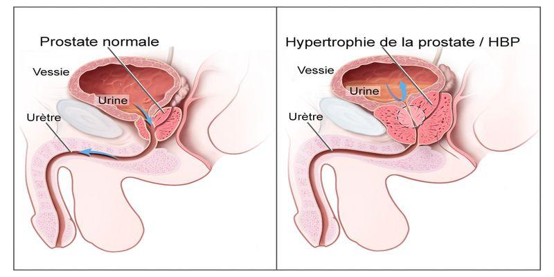 Hypertrophie Bnigne De La Prostate Hbp Les Symptmes Surveiller