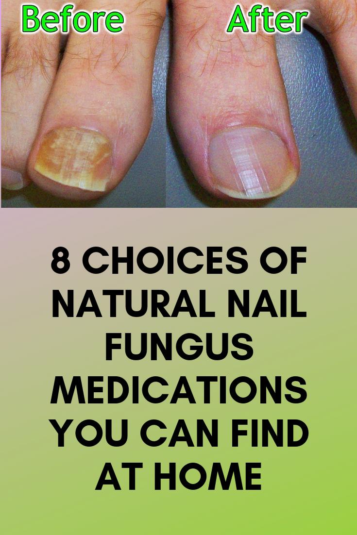 8 Choices of Natural Nail Fungus Medications You Can Find at Home ...
