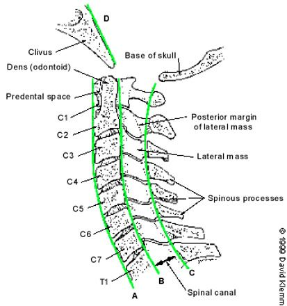 cervical vertebrae the body and the o 39 jays on pinterest : cervical spine diagram - findchart.co