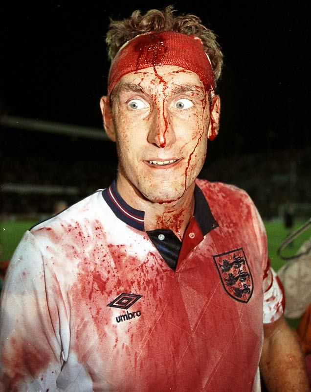 Terry Butcher  1990 World Cup qualifying  Despite a gash in his head that required stitches mid-match, Butcher insisted on returning to a pivotal match against Sweden during qualifying for Italia 90. The cut opened again as he continued to head the ball, leaving his face and kit in a bloody mess.      Read more: http://sportsillustrated.cnn.com/multimedia/photo_gallery/0806/playing.in.pain/content.25.html#ixzz1vujycurX