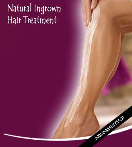 Prírodné zarastaniu vlasov Liečba
