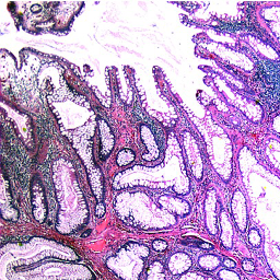 Image Peutz Jeghers Polyp Of The Colon Illustrating The