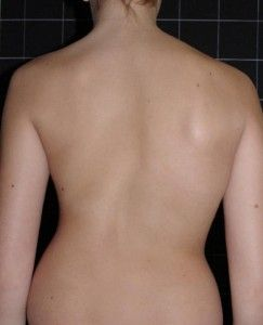 Teenager Becomes A Model After Overcoming Spine Condition Scoliosis Scoliosis Exercise How To Become