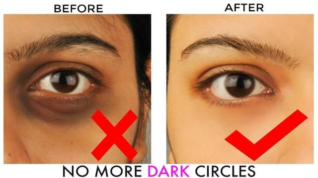How To Get RId Of Dark Circles Fast And Permanently | Dark ...