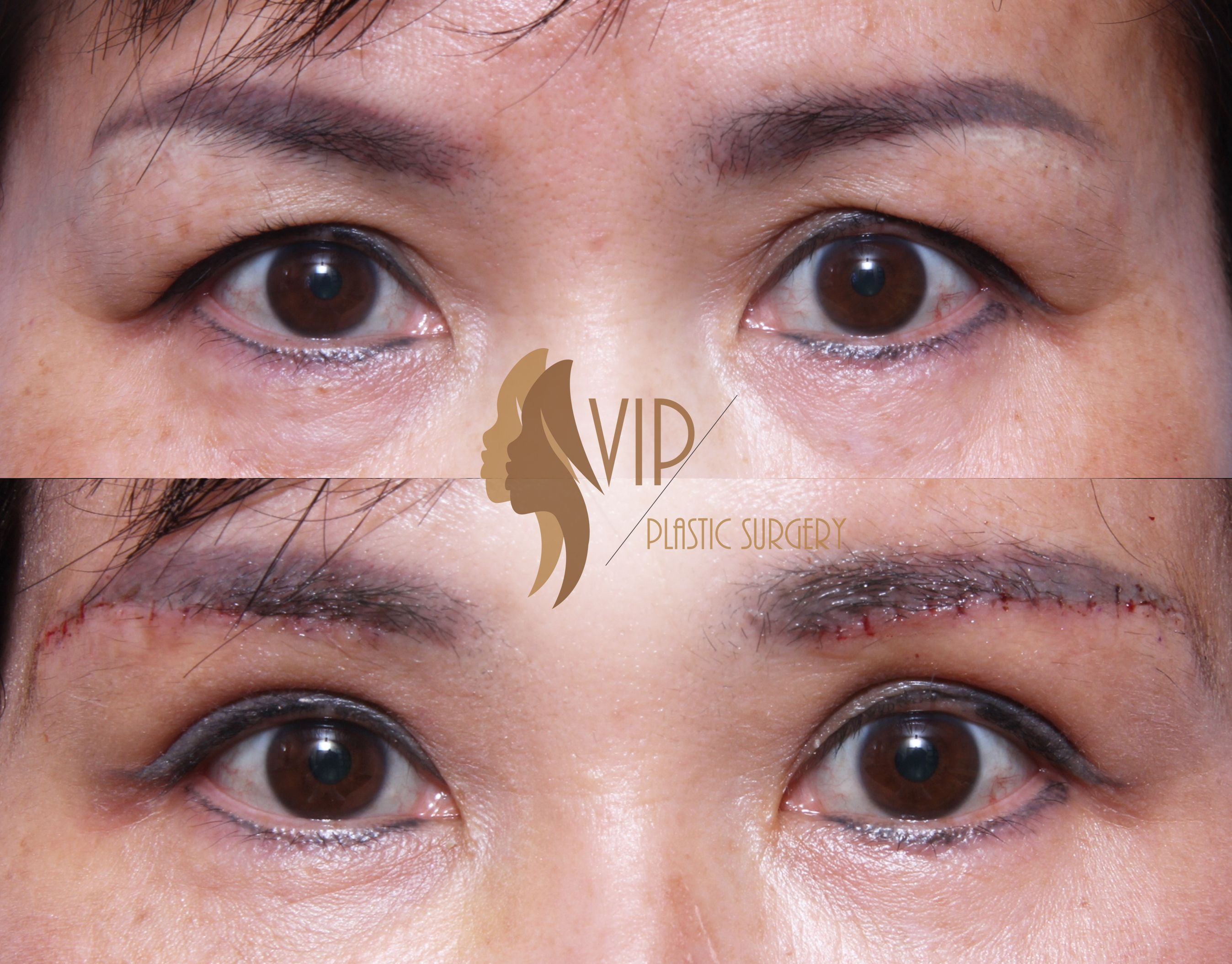 Dr Andrew K Choi Vip Plastic Surgery Los Angeles Under Eyebrow