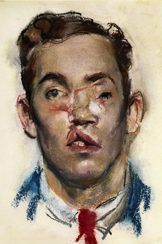 Henry Tonks: detailed drawing of 1st War wounded man, to be used as reference for facial re-structuring.