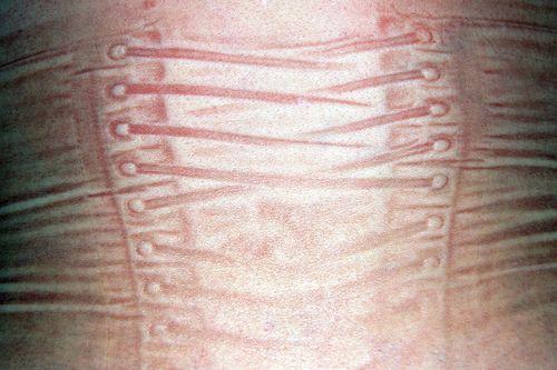 4f4dfa4f09 corset marks left on the skin