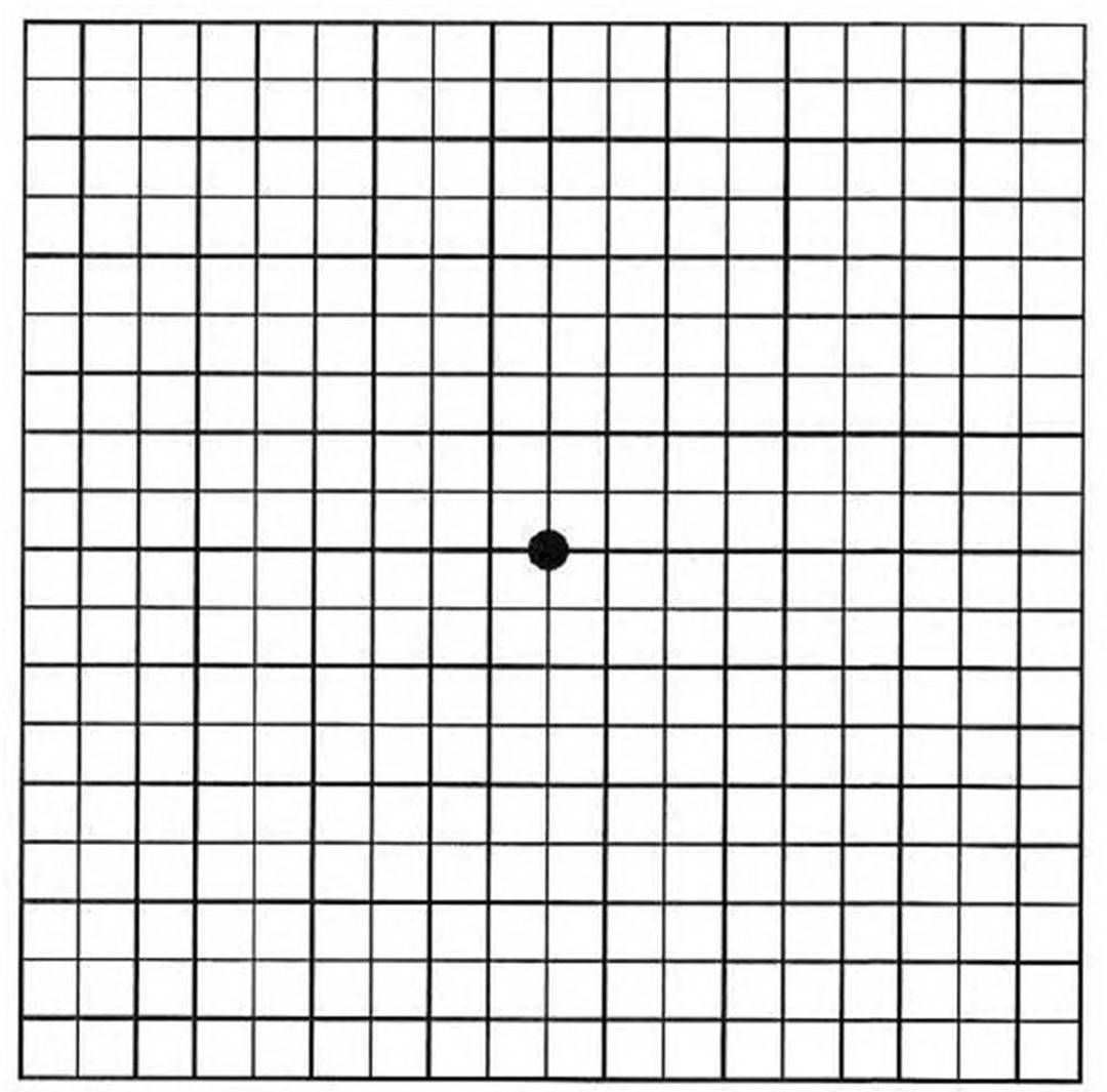 An Amsler Grid Is An Ophthalmic Tool That Helps Determine The