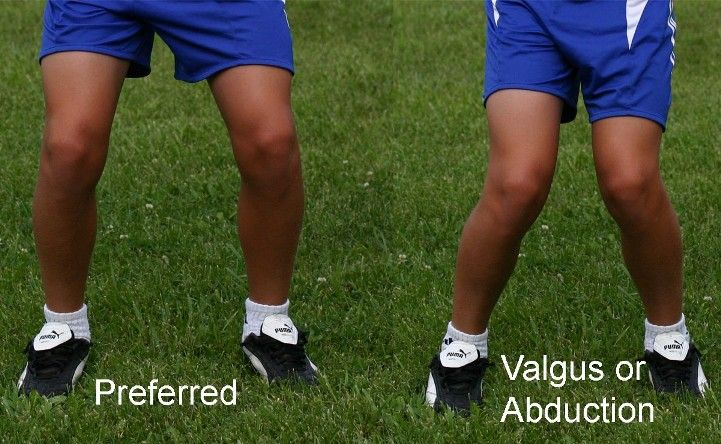 Three Best Acl Knee Braces For Football Acl Surgery Acl Knee