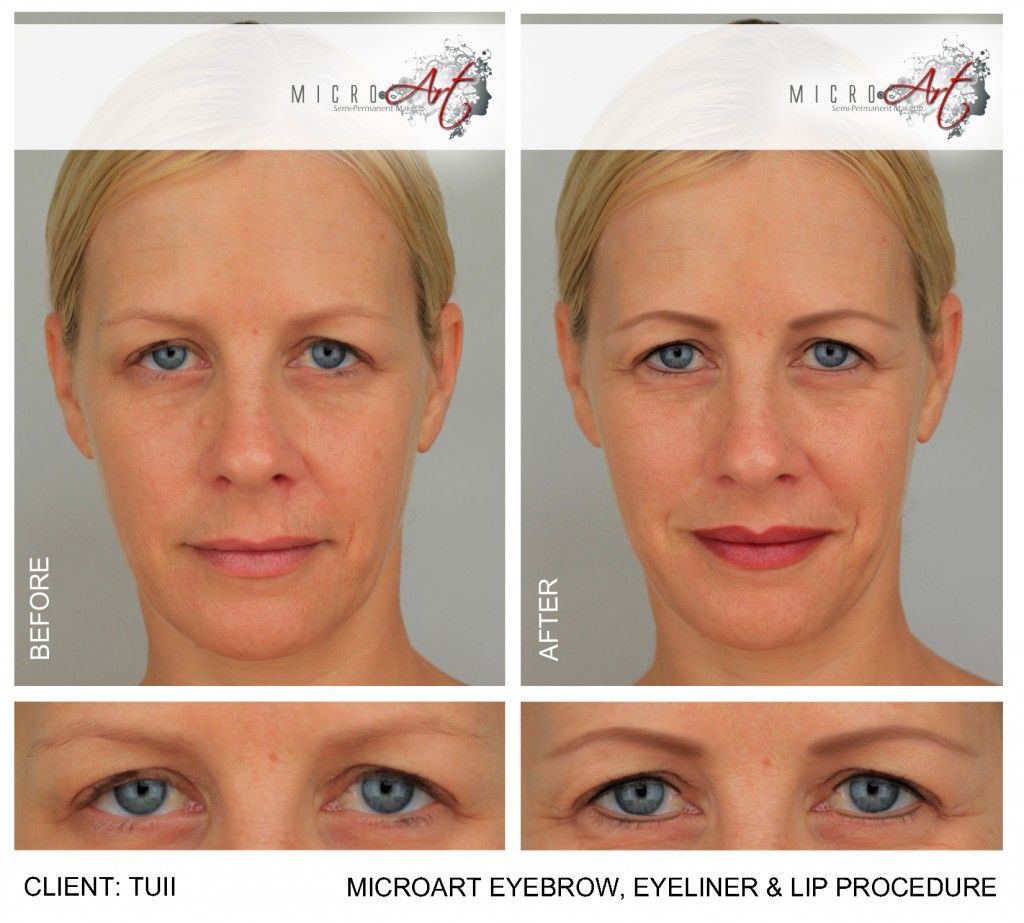 7acc393e0 Before and After Photos of MicroArt Semi Permanent Makeup for Eyebrows &  Eyeliner - an Alternative to Eyebrow Tattooing and Permanent Co…