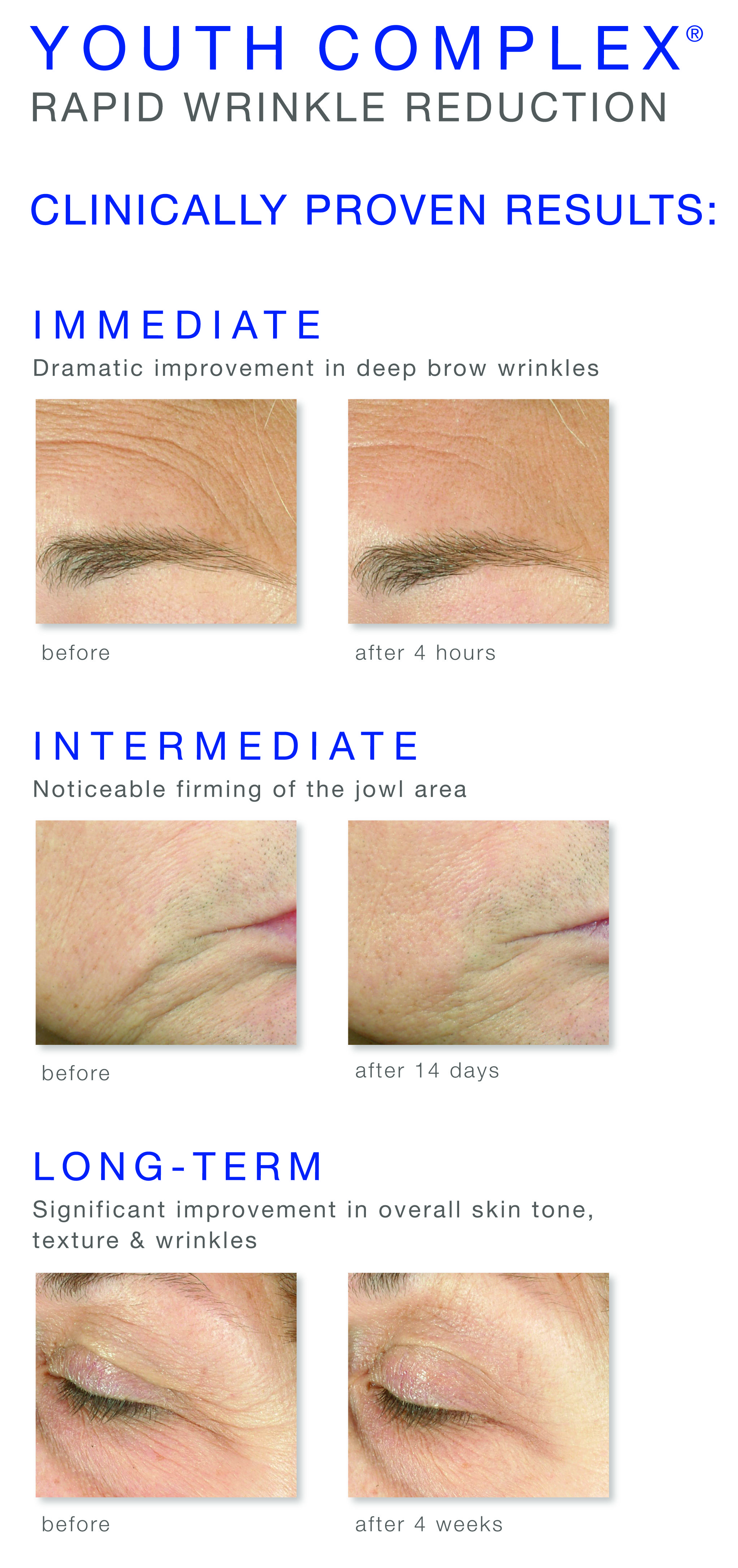 Is Clinical Youth Complex Rapid Wrinkle Reduction Wrinkle Reduction Brow Wrinkles Skin Science