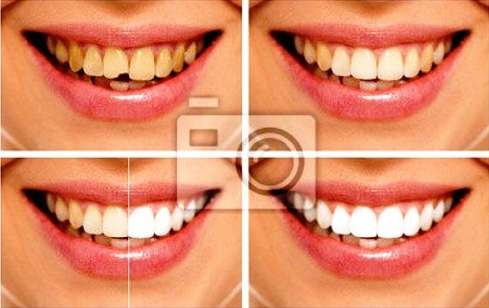 Tooth decay can be fixed without drilling and filling